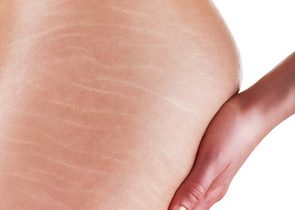 Traitement de la cellulite en Tunisie