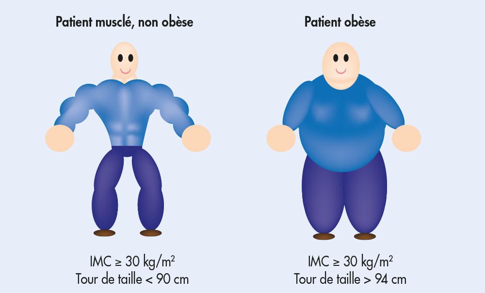 obesite chirurgie bariatrique
