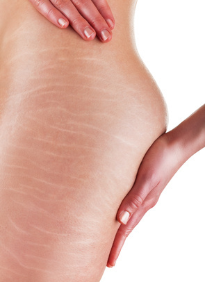 Traitement de la cellulite
